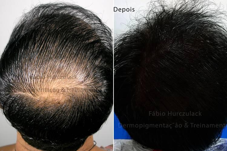 micropigmentacao capilar - antes e depois 2