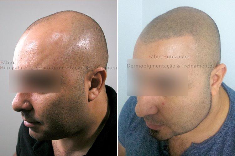 Micropigmentação capilar Masculina - Efeito Raspado - antes e depois