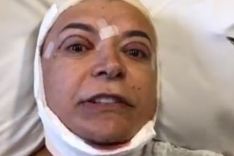 David Brazil passa por cirurgia – Saiba mais!