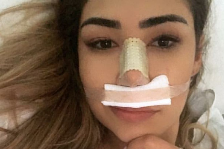 Ex-BBB realiza cirurgia facial – Saiba mais!