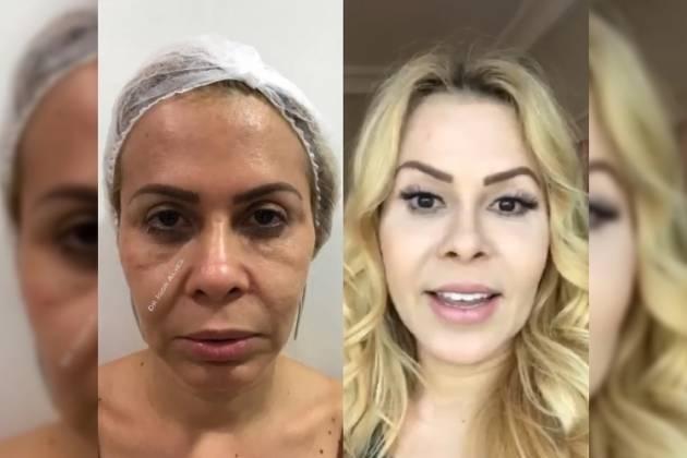 Antes e depois de Joelma - Reprodução/Instagram