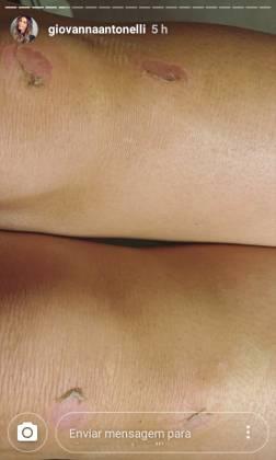 Giovanna Antonelli- joelhos machucados Stories Instagram.jpg 2