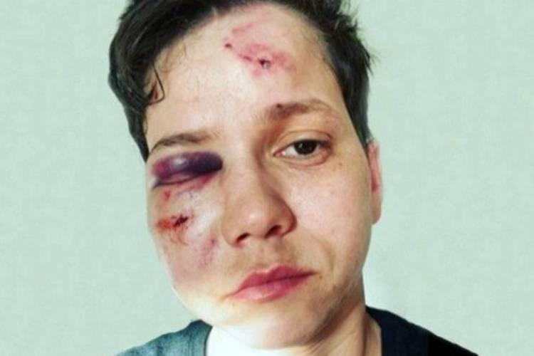 Após depoimentos, delegada afirma que ataque a youtuber Karol Eller não foi homofóbico