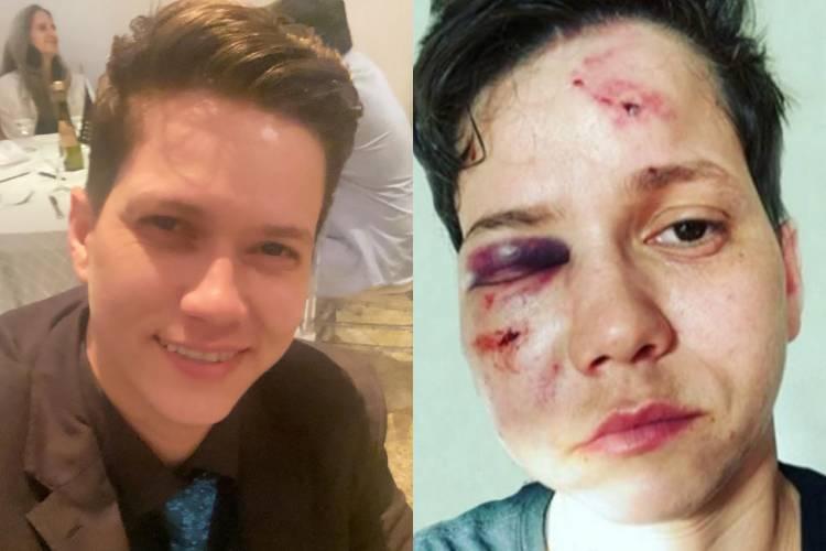 Youtuber que apoia Bolsonaro sofre ataque homofóbico