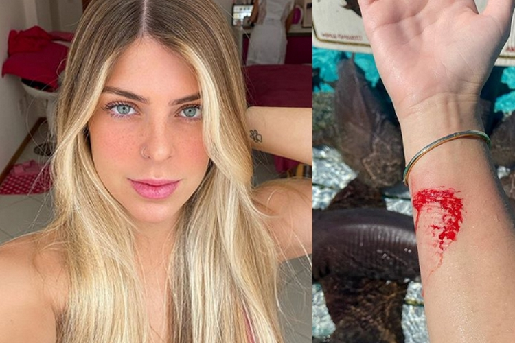Digital influencer é atacada por tubarão durante viagem de férias nas Bahamas