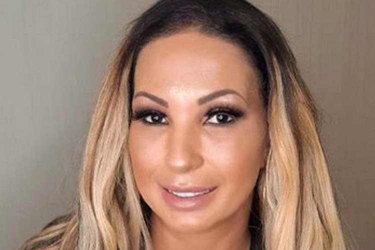 Valesca Popozuda pode sofrer deformação no rosto após cirurgia plástica