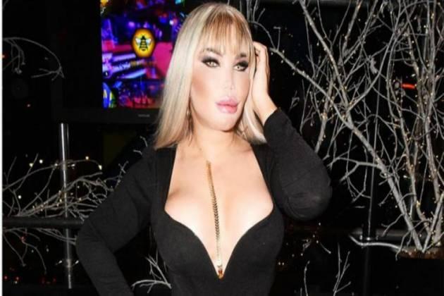 """Roddy, ex-Ken Humano, exibe feminização facial: """"Menininha"""""""
