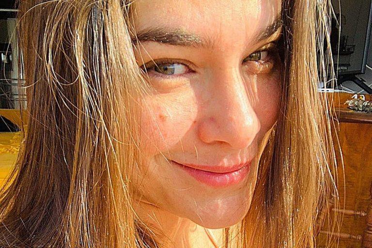 Priscila Fantin surpreende ao surgir com a boca modificada após procedimento estético