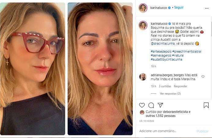 Após realizar procedimento estético, Karina Lucco mostra antes e depois - Foto: Reprodução/Instagram@karinalucco