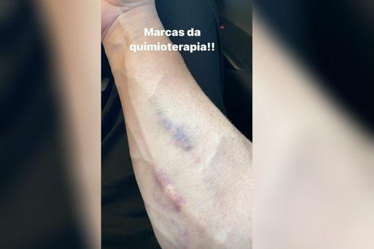 Marcas da Quimioterapia - Reprodução: Instagram (Montagem: Área VIP)