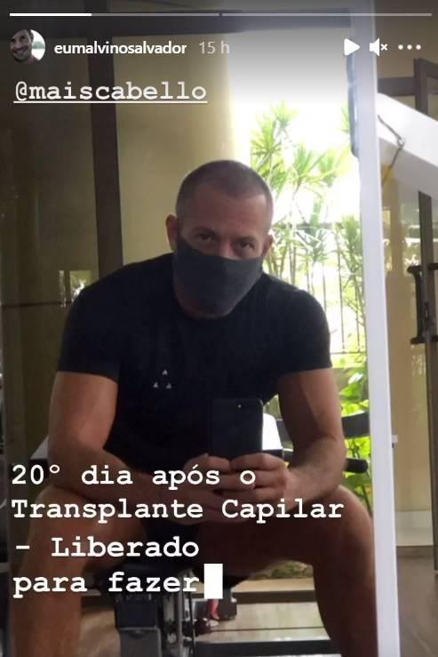 Malvino Salvador surpreende ao mostrar resultado após 20 dias de implante capilar - Foto: Reprodução/ Instagram